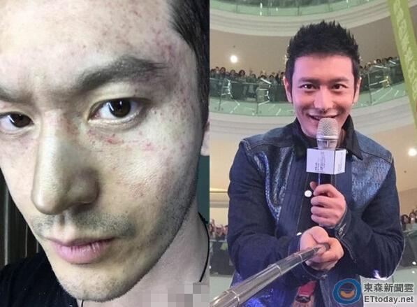 黄晓明求助网友 称拍戏倒挂致面部血管爆裂