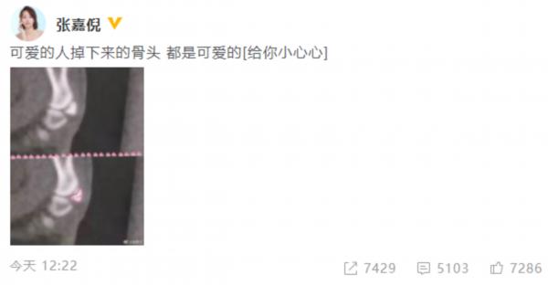 张嘉倪受伤X光片上画爱心 自侃掉下来的骨头可爱