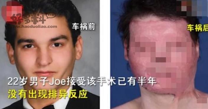 【美天棋牌】全球首例成功换脸换手手术 车祸导致他的脸完全毁容